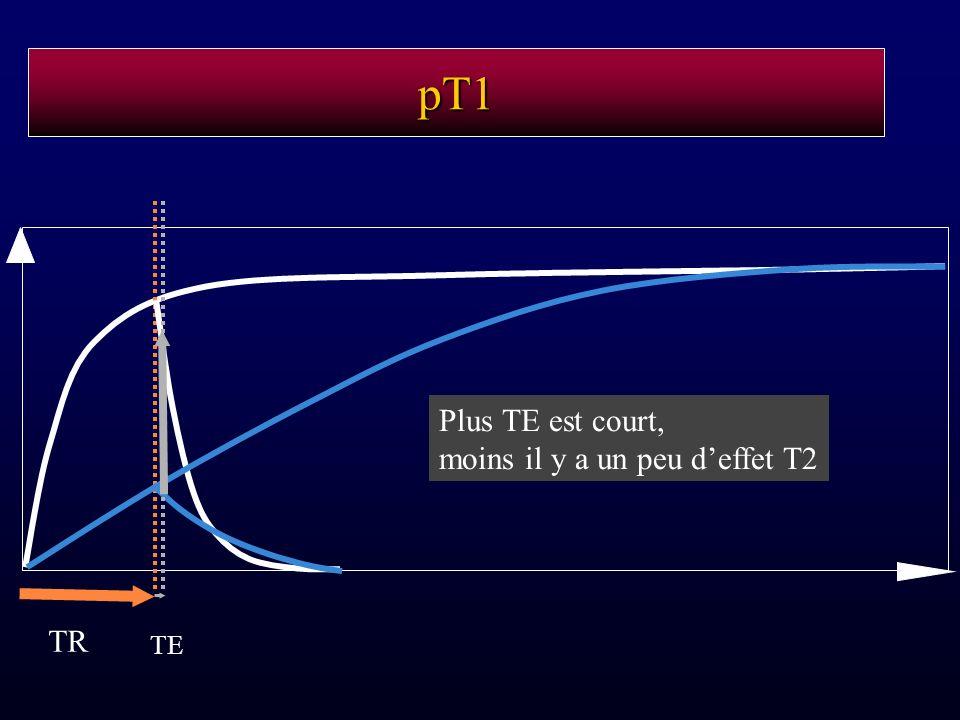 pT1 TR TE Plus TE est court, moins il y a un peu deffet T2