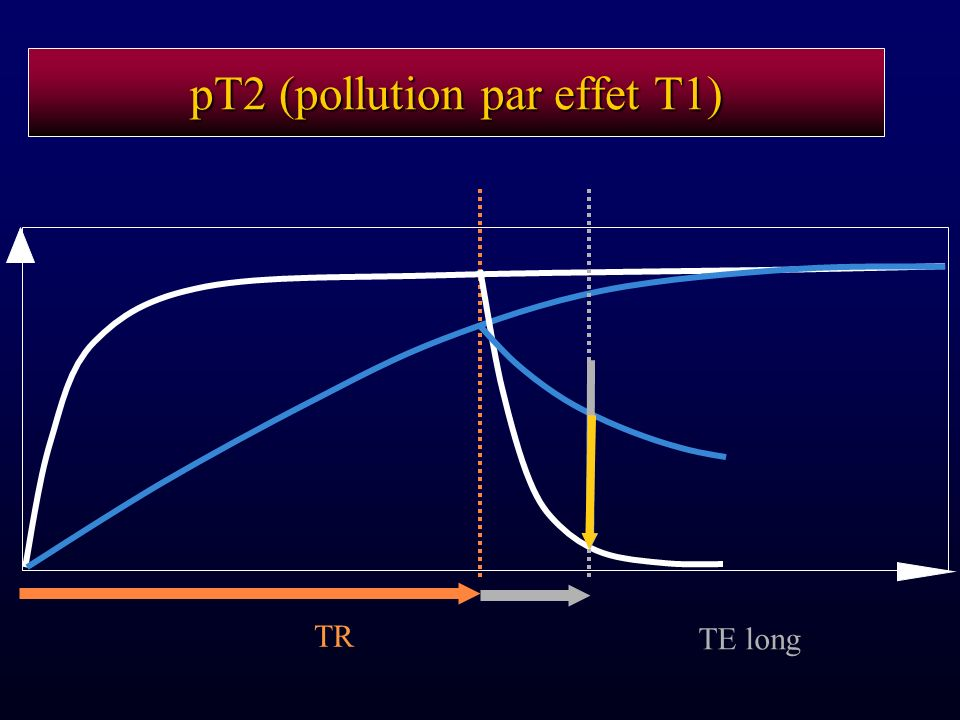 pT2 (pollution par effet T1) TR TE long