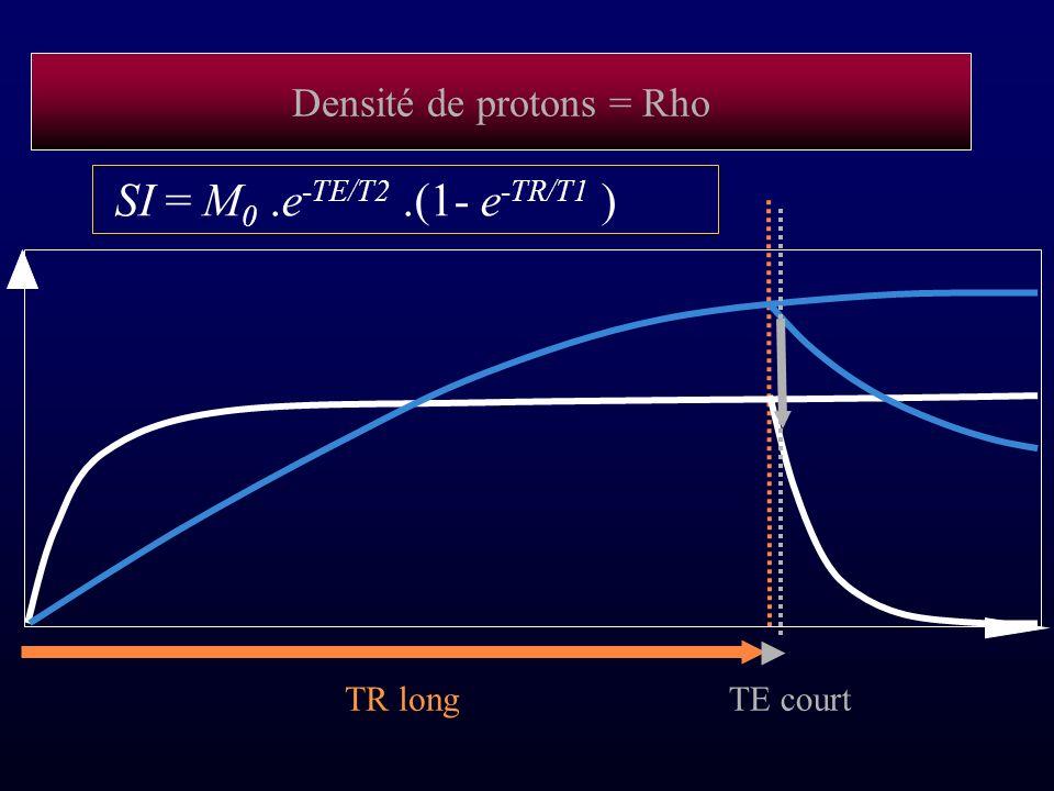 Densité de protons = Rho TR longTE court SI = M 0.e -TE/T2.(1- e -TR/T1 )