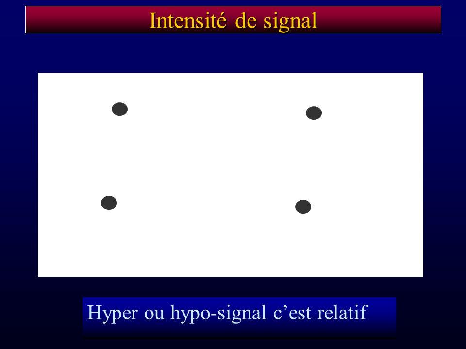 Intensité de signal Hyper ou hypo-signal cest relatif