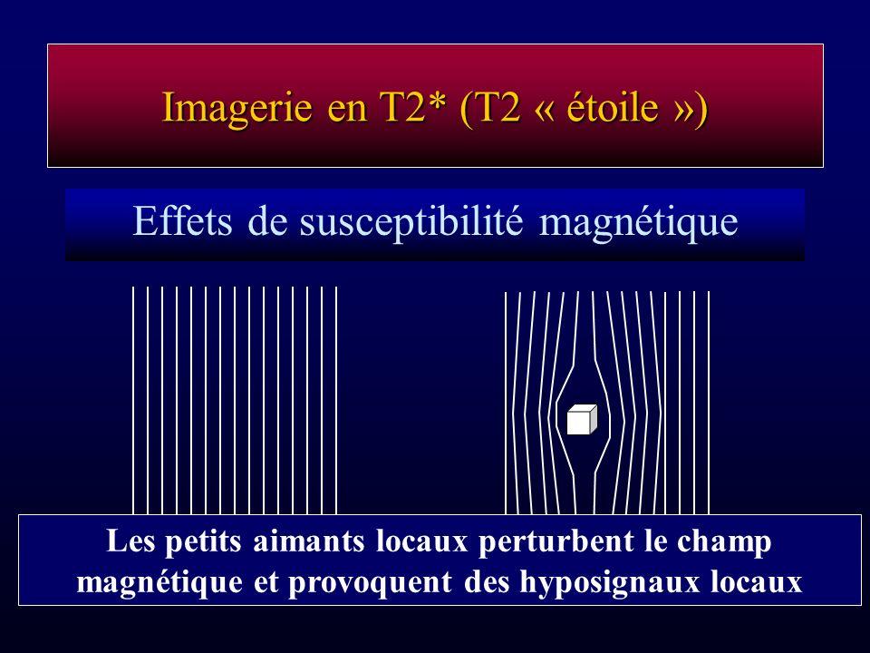 Imagerie en T2* (T2 « étoile ») Effets de susceptibilité magnétique Les petits aimants locaux perturbent le champ magnétique et provoquent des hyposig