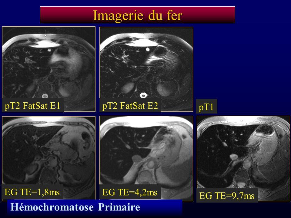 Imagerie du fer pT2 FatSat E1pT2 FatSat E2 pT1 EG TE=1,8ms EG TE=4,2ms EG TE=9,7ms Hémochromatose Primaire