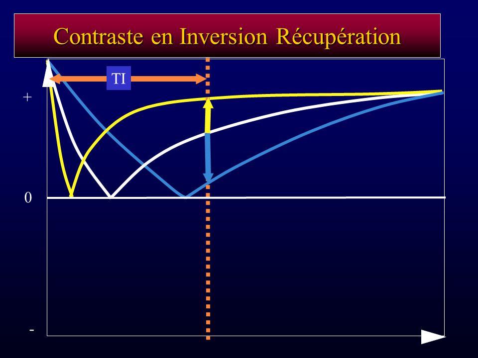 Contraste en Inversion Récupération TI - 0 +