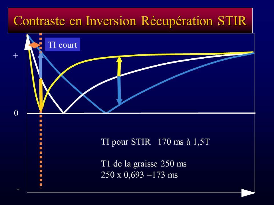 Contraste en Inversion Récupération STIR TI pour STIR 170 ms à 1,5T T1 de la graisse 250 ms 250 x 0,693 =173 ms TI court - 0 +