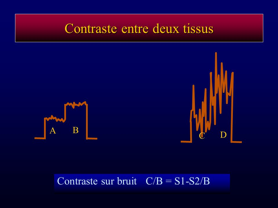 Contraste entre deux tissus Contraste sur bruit C/B = S1-S2/B A B C D