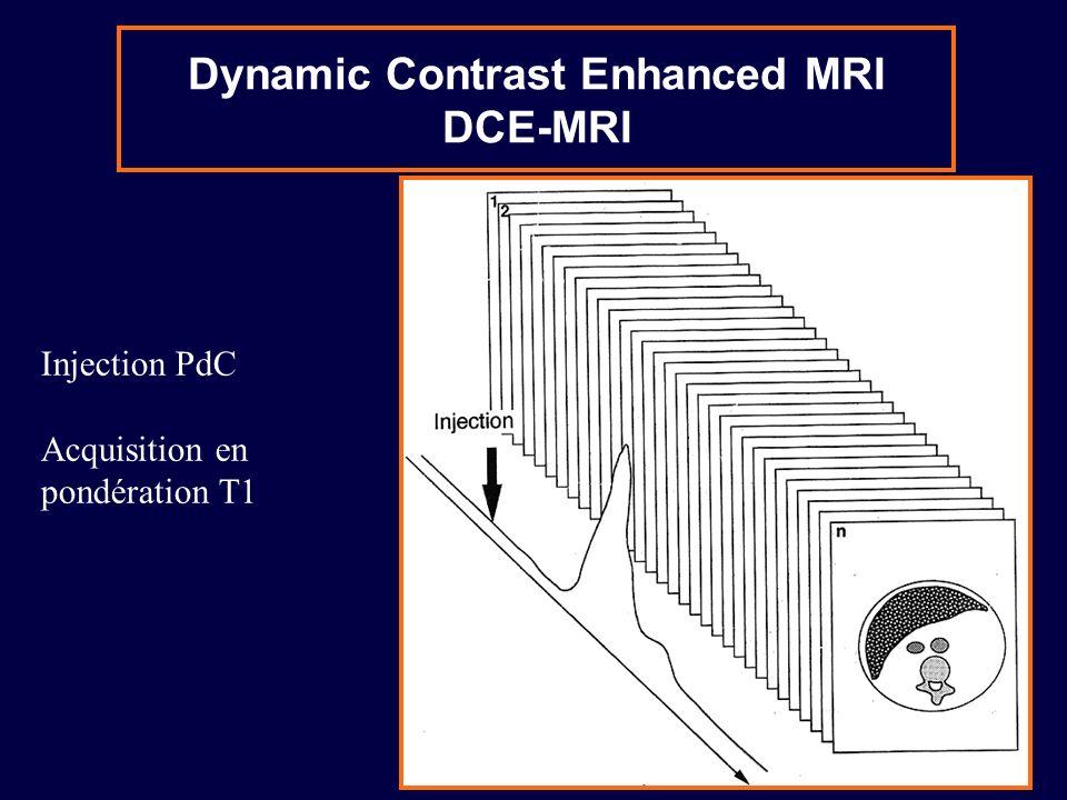 Enhancement curves Wash-out => malignant Faible résolution temporelle (1i/60s) Acquisition longue (8 min) Pas dutilisation de fonction dentrée artérielle Imagerie 3D haute résolution Haute résolution temporelle (1i/2s) Acquisition courte (90s) Utilisation dune fonction dentrée Acquisition 2D