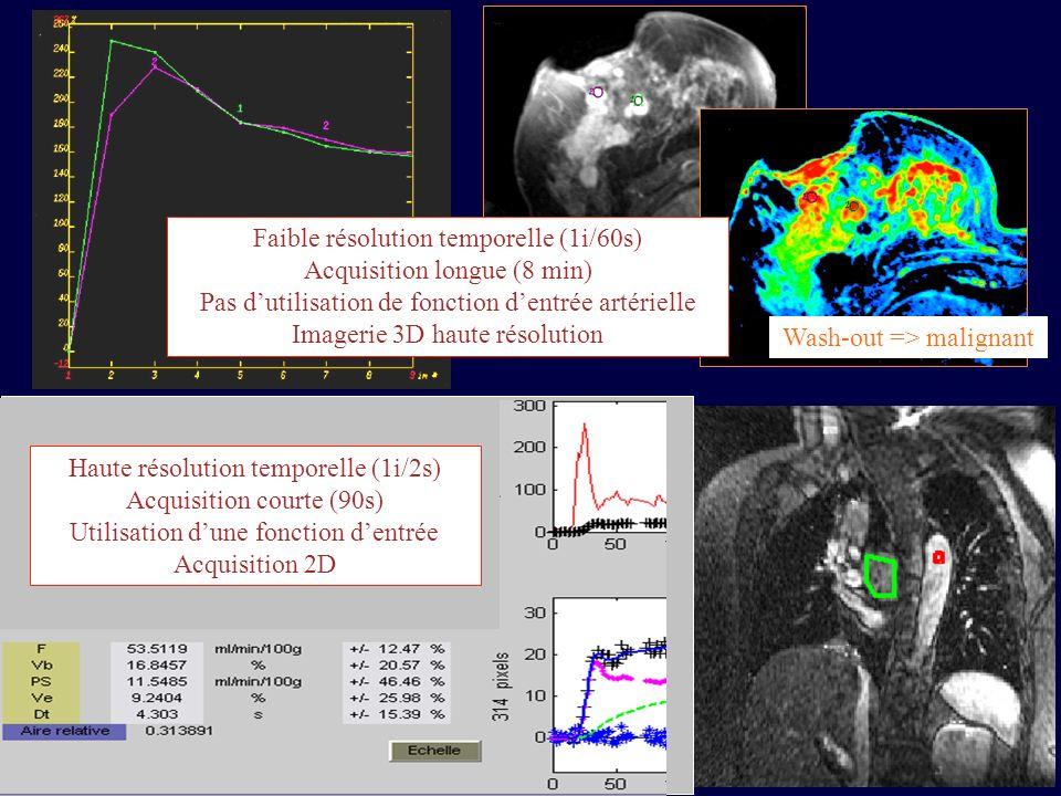 Artery (AIF) Tissue Plasma artery red cells interstitium v pc q pc viqiviqi Plasma capillary red cells tissue cells PS v RC 0 v Cell 0 1-Hct q pa V T =1 q T Hct 0 Faible résolution temporelle Acquisition moyenne : Patlak q T = q pc + q i q pc (i+1) = v p * q pa (i+1) - dt [PS*q pc (i) /v pc - PS*q i (i) /v i ] q i (i+1)= q i (i) + dt[PS*q pc (i)/v p - PS*q i (i)/v i ]