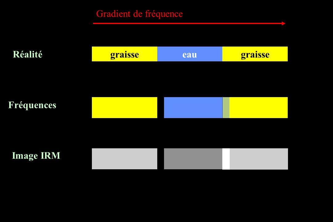 graisse Réalité Fréquences Image IRM eau Gradient de fréquence