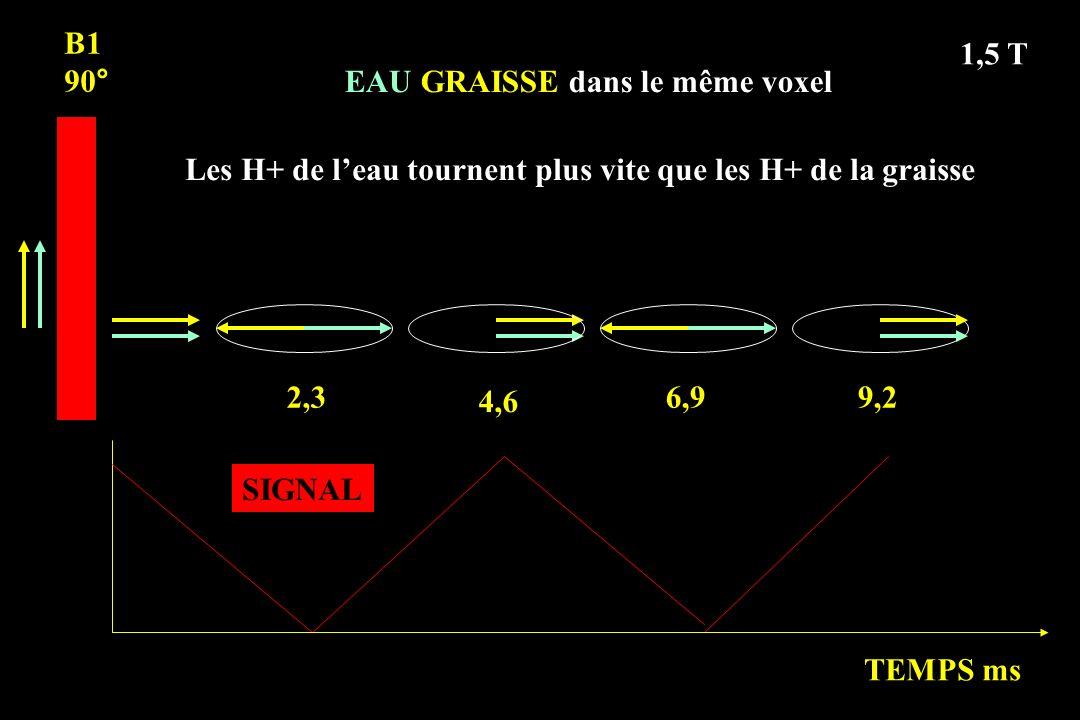 B1 90° 2,3 4,6 6,99,2 EAU GRAISSE dans le même voxel TEMPS ms 1,5 T Les H+ de leau tournent plus vite que les H+ de la graisse SIGNAL