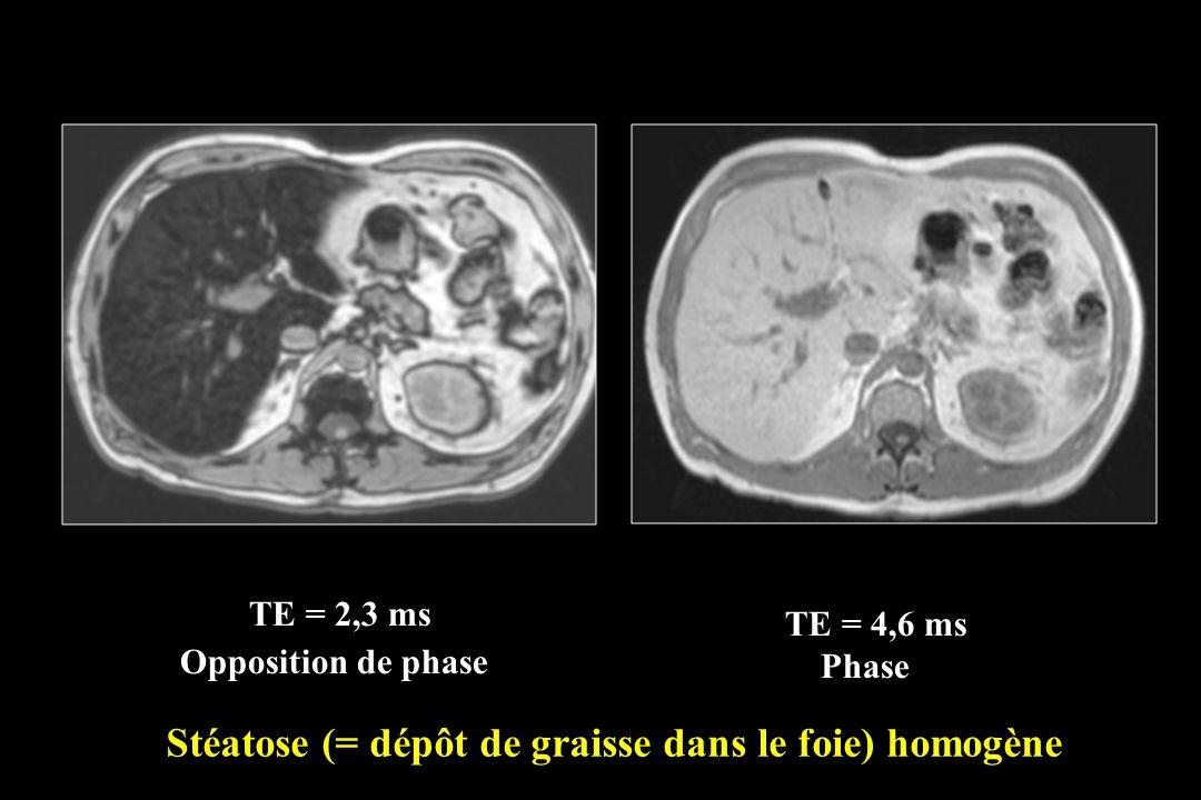 TE = 4,6 ms Phase TE = 2,3 ms Opposition de phase Stéatose (= dépôt de graisse dans le foie) homogène