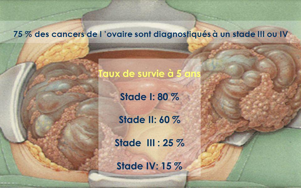 75 % des cancers de l ovaire sont diagnostiqués à un stade III ou IV Taux de survie à 5 ans Stade I: 80 % Stade II: 60 % Stade III : 25 % Stade IV: 15 %