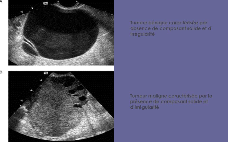 Tumeur bénigne caractérisée par absence de composant solide et d irrégularité Tumeur maligne caractérisée par la présence de composant solide et dirrégularité