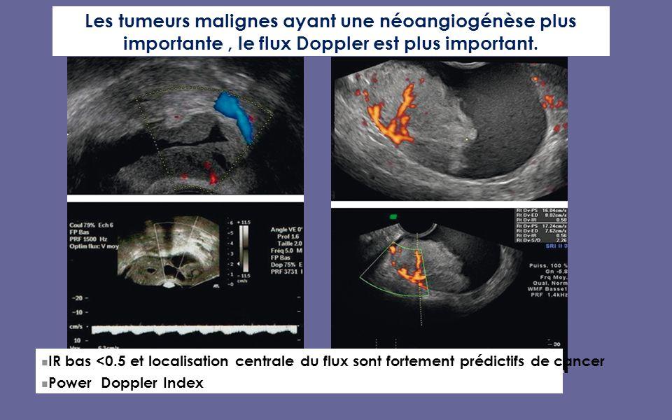 IR bas <0.5 et localisation centrale du flux sont fortement prédictifs de cancer Power Doppler Index Les tumeurs malignes ayant une néoangiogénèse plus importante, le flux Doppler est plus important.