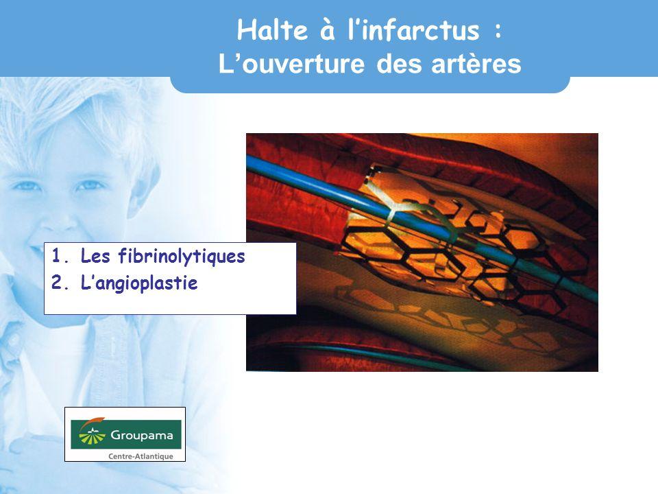 Halte à linfarctus : Louverture des artères 1.Les fibrinolytiques 2.Langioplastie