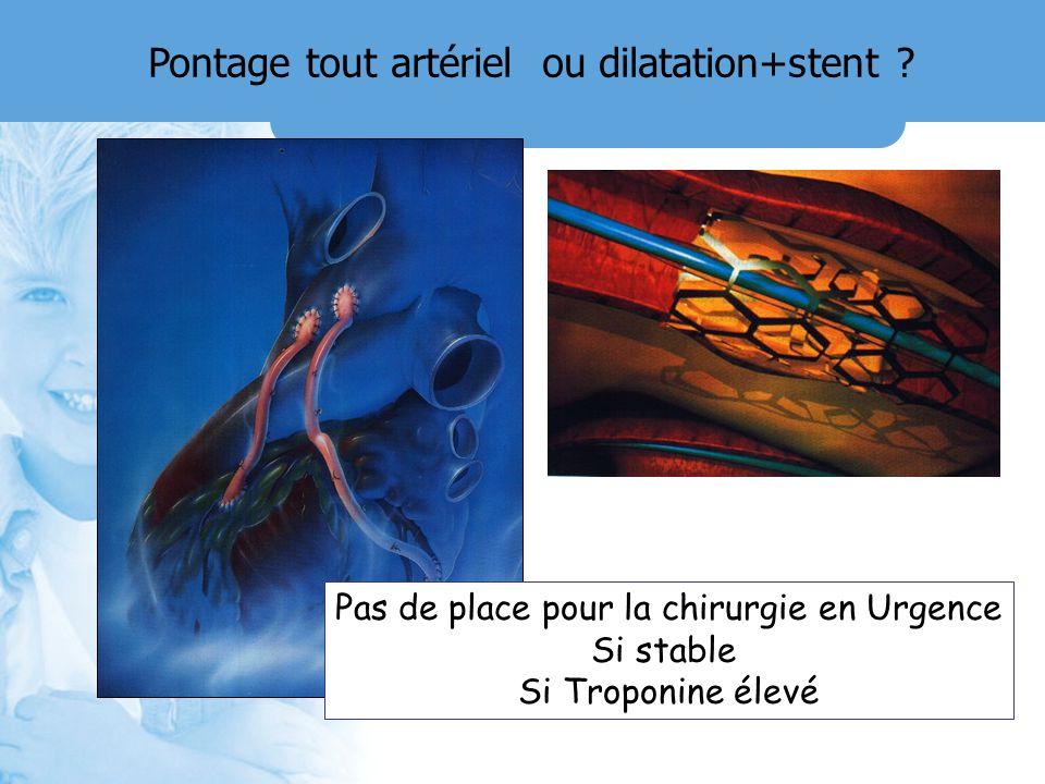 Pontage tout artériel ou dilatation+stent ? Pas de place pour la chirurgie en Urgence Si stable Si Troponine élevé