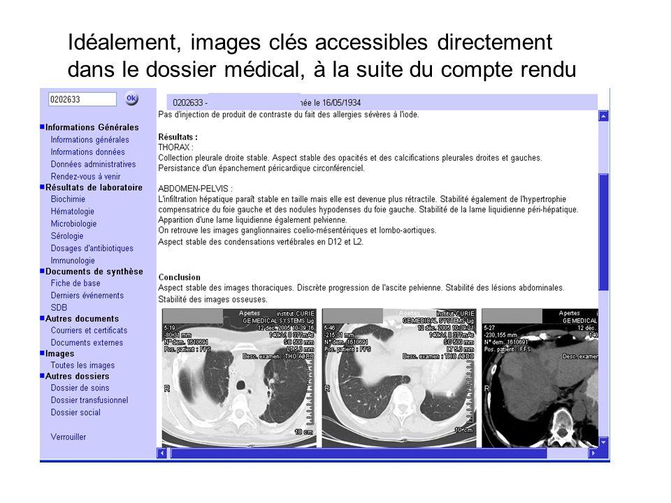 Idéalement, images clés accessibles directement dans le dossier médical, à la suite du compte rendu