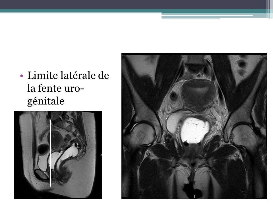 Limite latérale de la fente uro- génitale