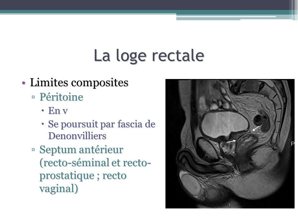 La loge rectale Limites compositesLimites composites PéritoinePéritoine En v En v Se poursuit par fascia de Denonvilliers Se poursuit par fascia de De