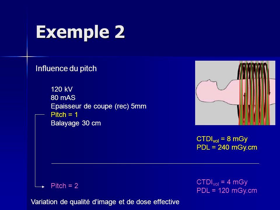 Exemple 2 Influence du pitch 120 kV 80 mAS Epaisseur de coupe (rec) 5mm Pitch = 1 Balayage 30 cm CTDI vol = 8 mGy PDL = 240 mGy.cm CTDI vol = 4 mGy PD