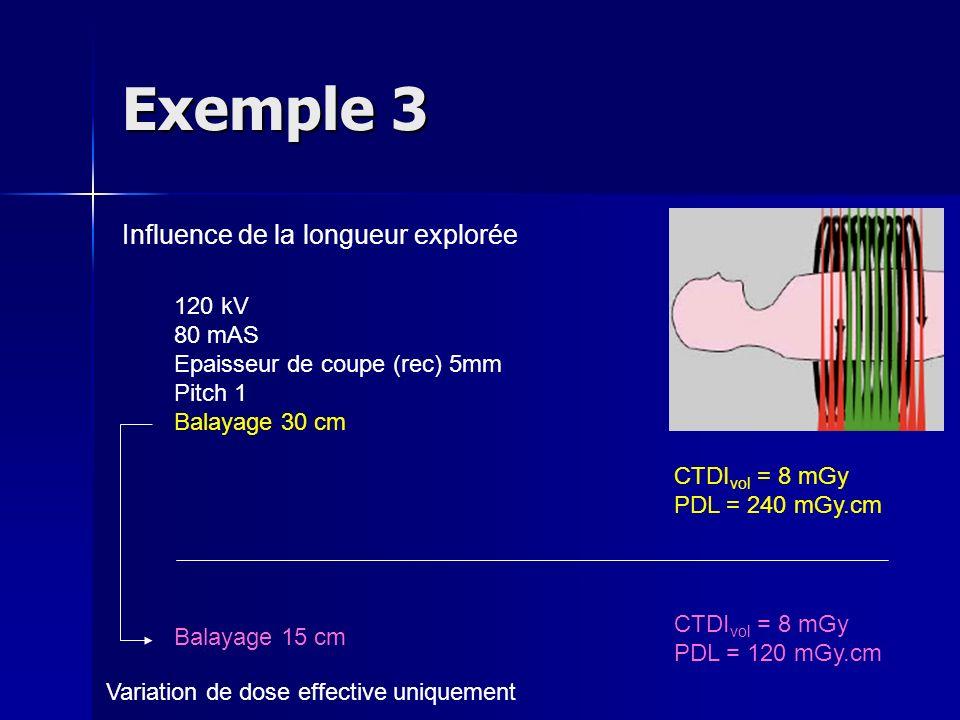 Exemple 3 Influence de la longueur explorée 120 kV 80 mAS Epaisseur de coupe (rec) 5mm Pitch 1 Balayage 30 cm CTDI vol = 8 mGy PDL = 240 mGy.cm CTDI v