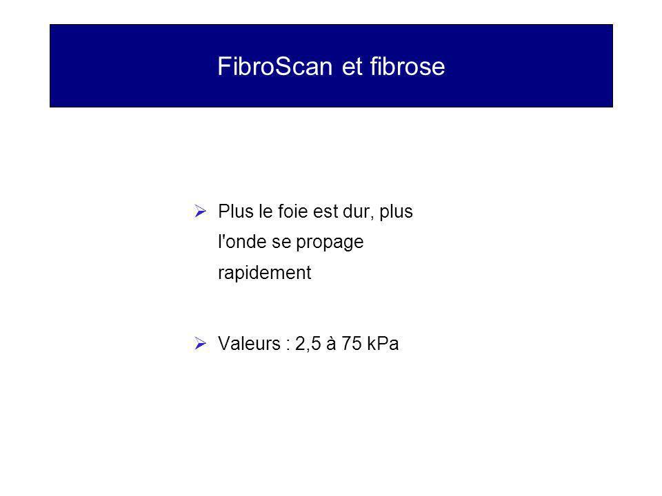 FibroScan et fibrose Plus le foie est dur, plus l'onde se propage rapidement Valeurs : 2,5 à 75 kPa