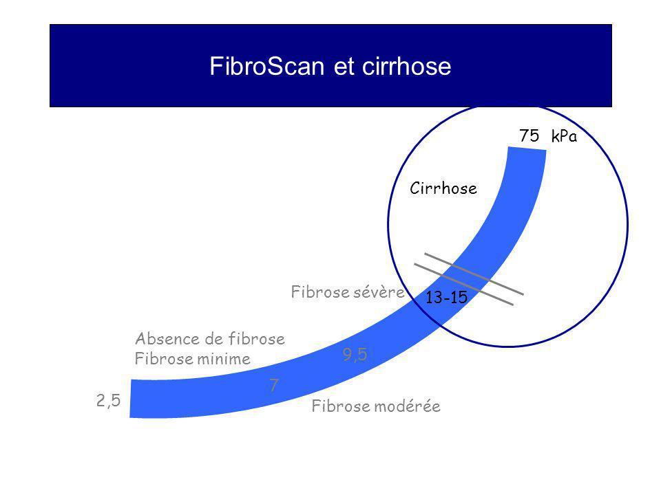 FibroScan et cirrhose kPa75 7 9,5 13-15 2,5 Cirrhose Fibrose sévère Fibrose modérée Absence de fibrose Fibrose minime