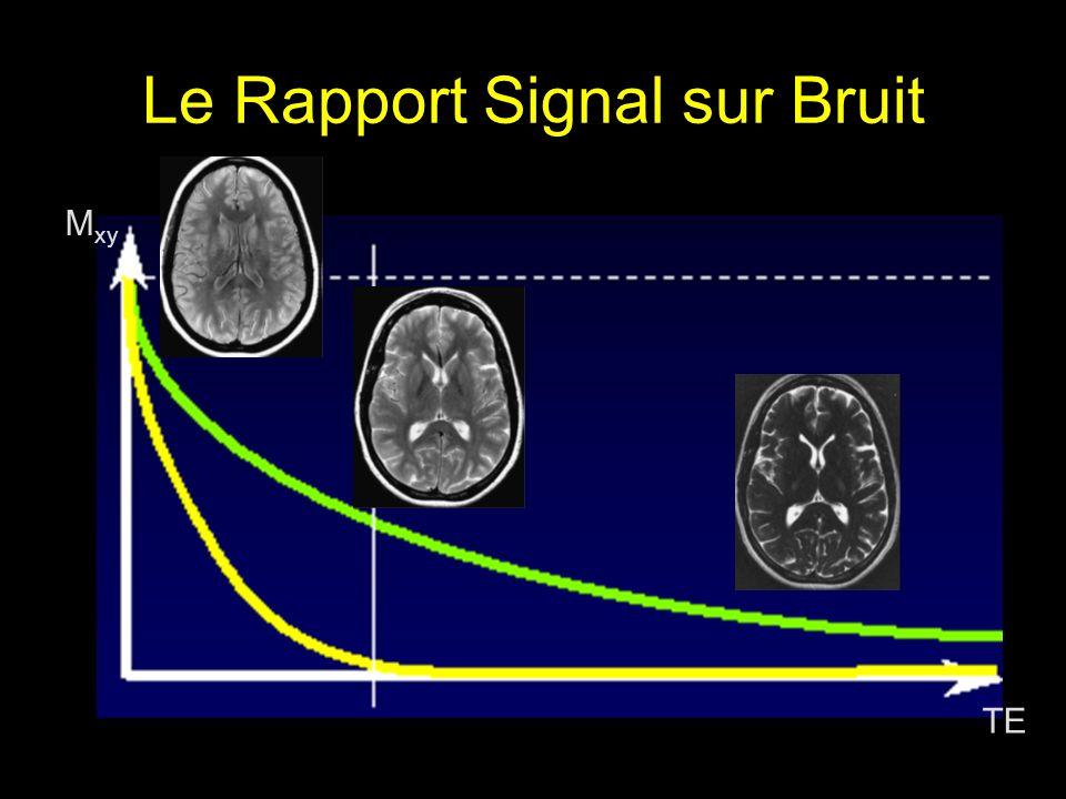 Le Rapport Signal sur Bruit TE M xy