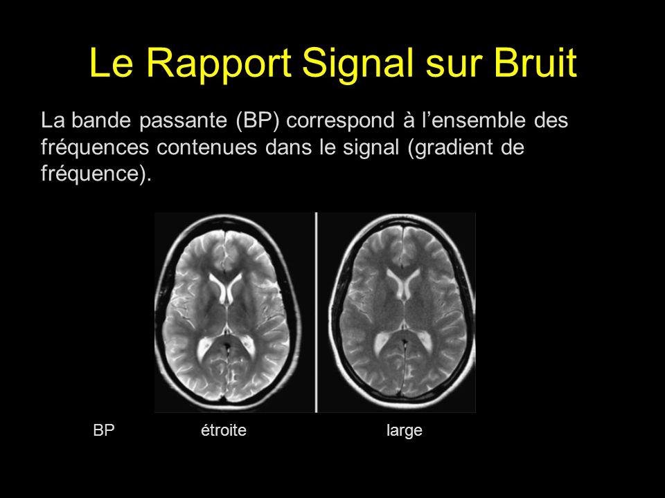 Le Rapport Signal sur Bruit BP étroite large La bande passante (BP) correspond à lensemble des fréquences contenues dans le signal (gradient de fréque