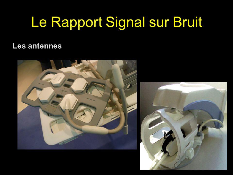 Le Rapport Signal sur Bruit Les antennes