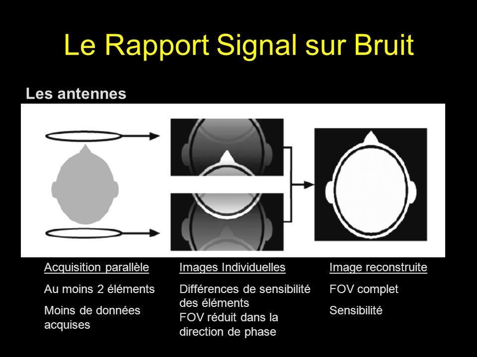 Le Rapport Signal sur Bruit Les antennes Acquisition parallèle Au moins 2 éléments Moins de données acquises Images Individuelles Différences de sensi