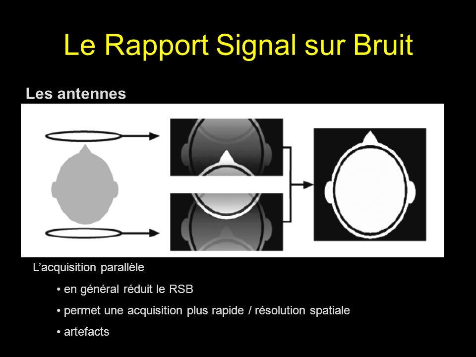 Le Rapport Signal sur Bruit Les antennes Lacquisition parallèle en général réduit le RSB permet une acquisition plus rapide / résolution spatiale arte