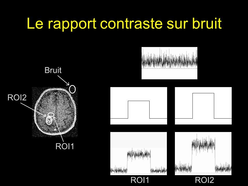 Le rapport contraste sur bruit Bruit ROI2 ROI1 ROI2