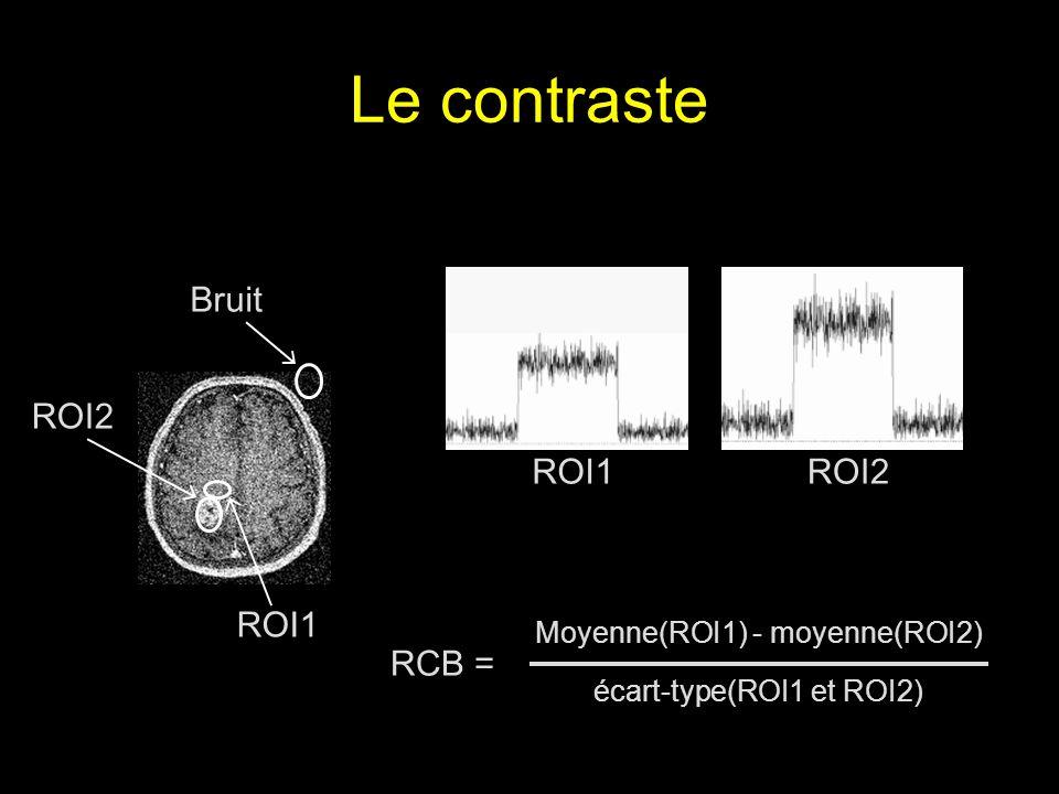 Le contraste RCB = Moyenne(ROI1) - moyenne(ROI2) écart-type(ROI1 et ROI2) ROI1ROI2 Bruit ROI2 ROI1