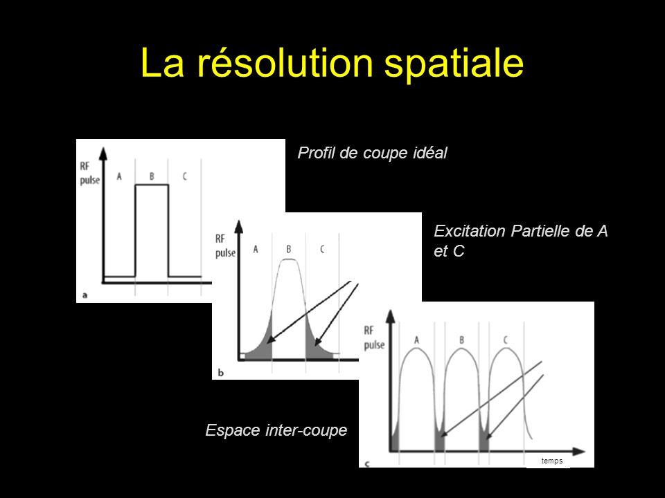 La résolution spatiale Profil de coupe idéal temps Excitation Partielle de A et C temps Espace inter-coupe temps