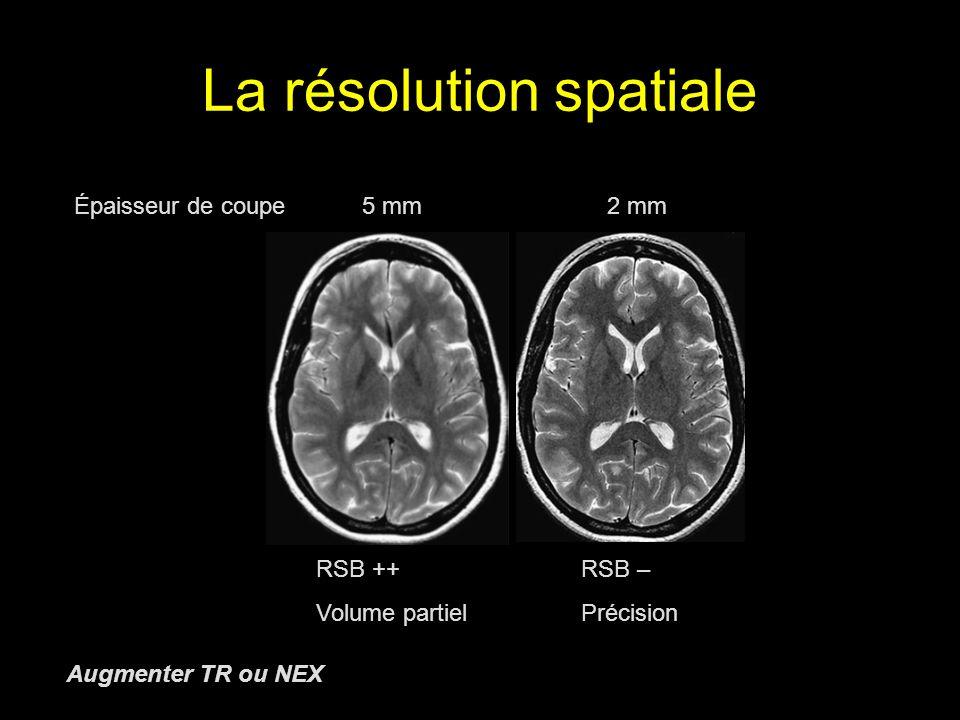 La résolution spatiale Épaisseur de coupe5 mm 2 mm RSB ++ RSB – Volume partiel Précision Augmenter TR ou NEX