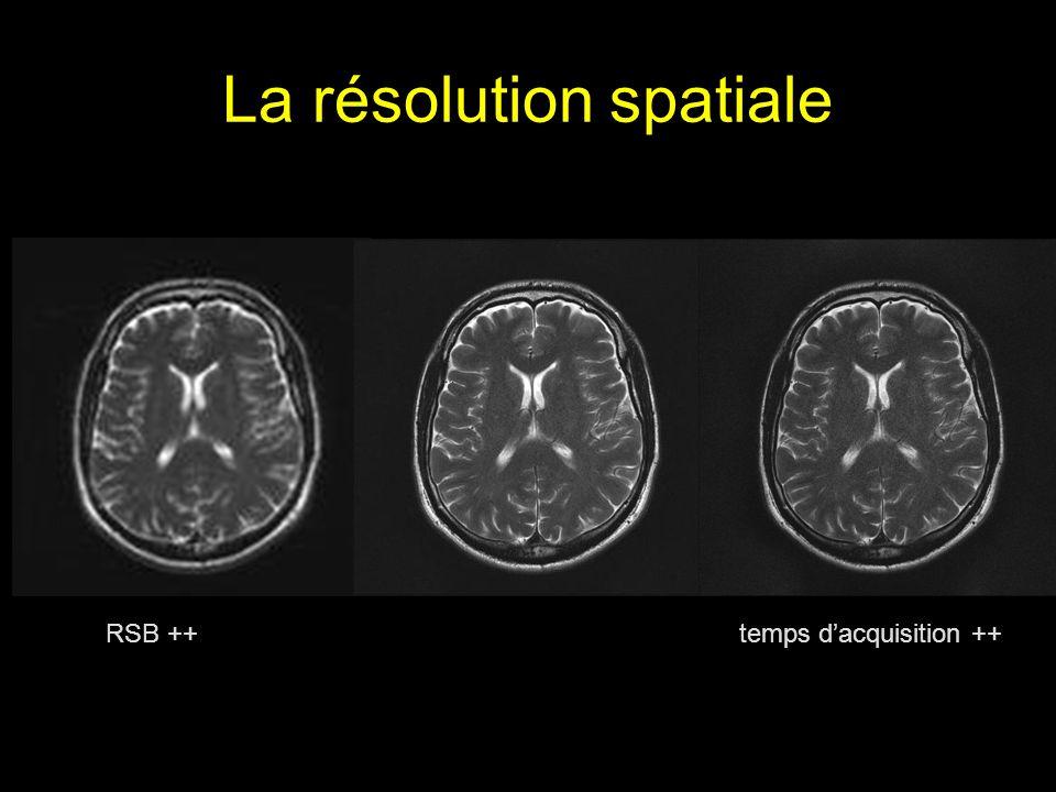 La résolution spatiale RSB ++ temps dacquisition ++