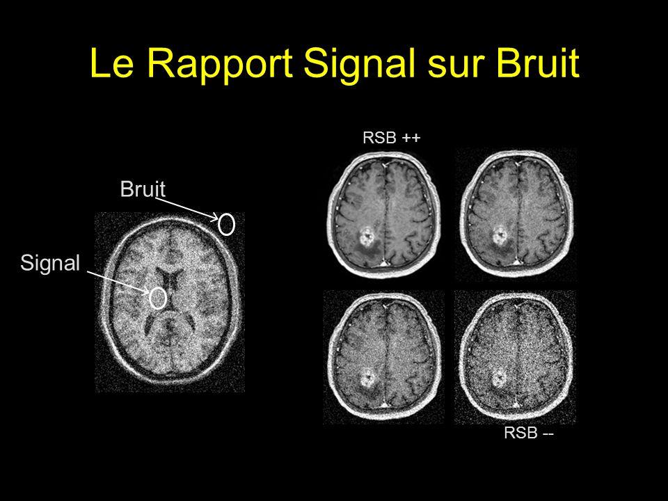 Le Rapport Signal sur Bruit Signal Bruit RSB ++ RSB --