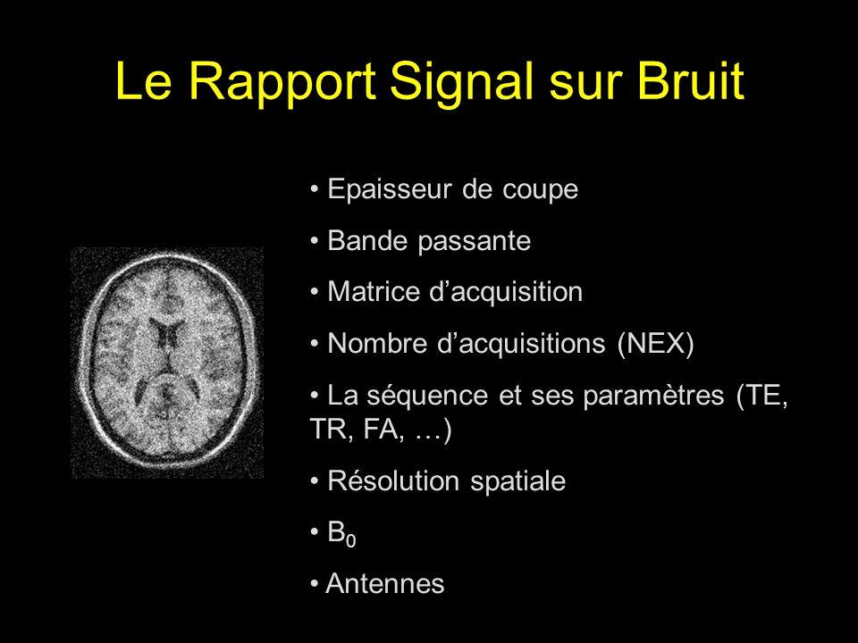 Le Rapport Signal sur Bruit Epaisseur de coupe Bande passante Matrice dacquisition Nombre dacquisitions (NEX) La séquence et ses paramètres (TE, TR, F