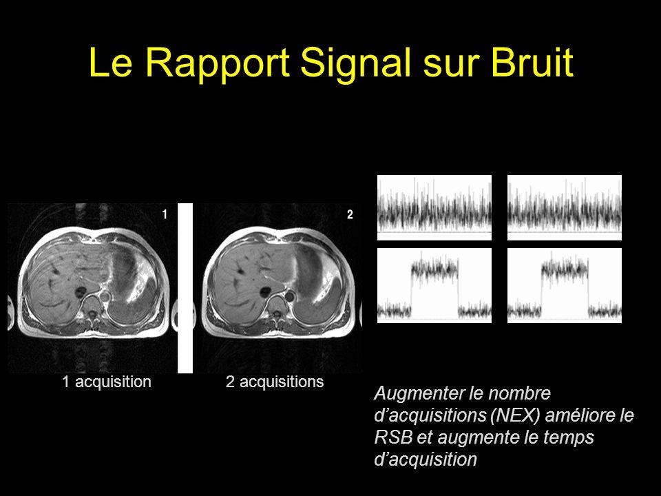 Le Rapport Signal sur Bruit 1 acquisition 2 acquisitions Augmenter le nombre dacquisitions (NEX) améliore le RSB et augmente le temps dacquisition