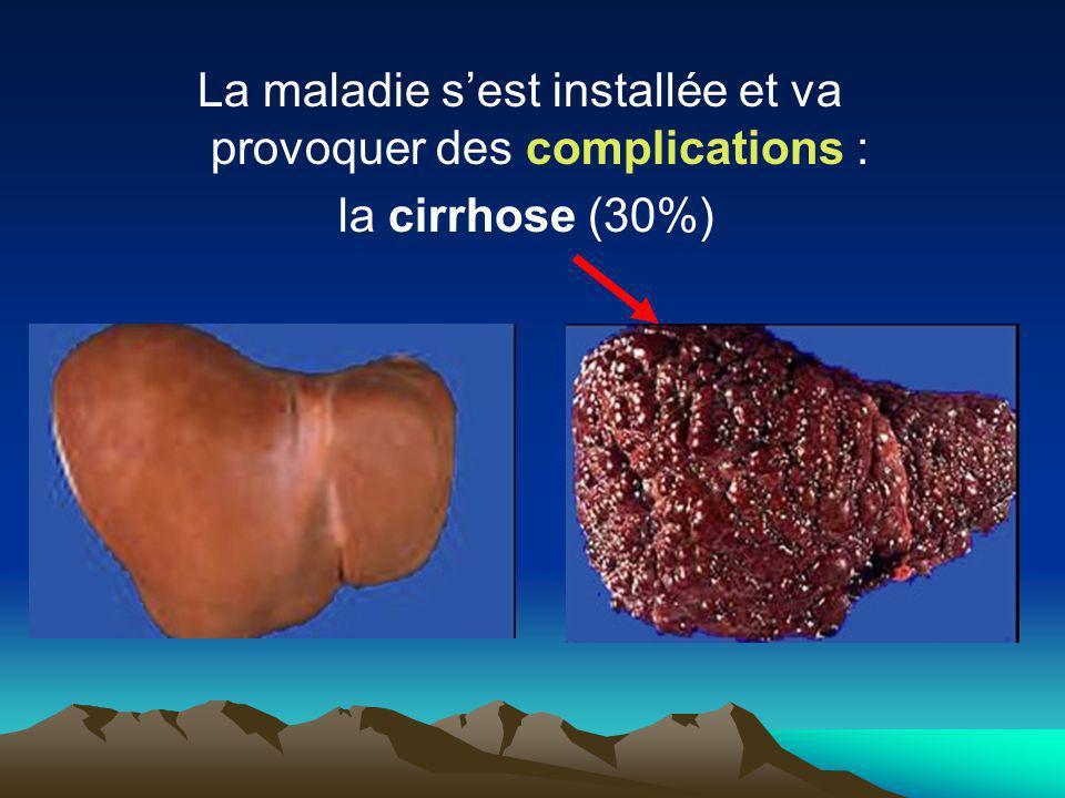 La maladie sest installée et va provoquer des complications : la cirrhose (30%)