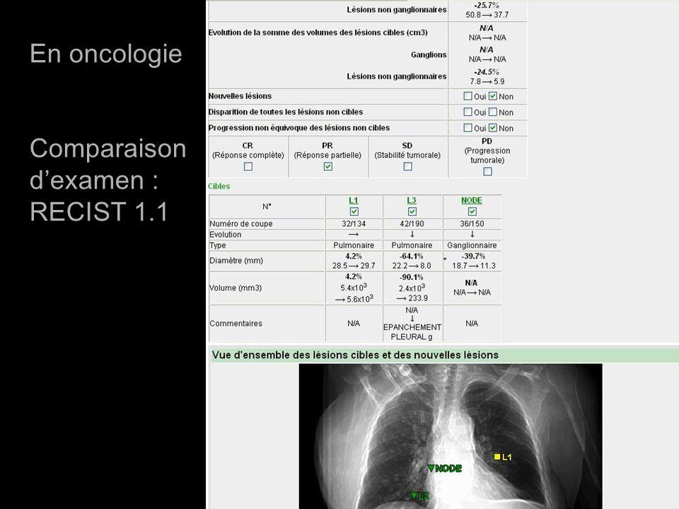 Compte rendu RECIST1.1 En oncologie Comparaison dexamen : RECIST 1.1