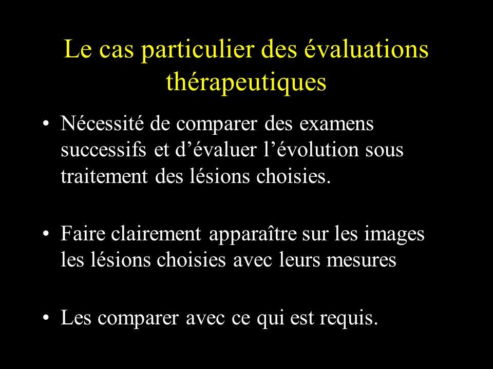 Le cas particulier des évaluations thérapeutiques Nécessité de comparer des examens successifs et dévaluer lévolution sous traitement des lésions choi