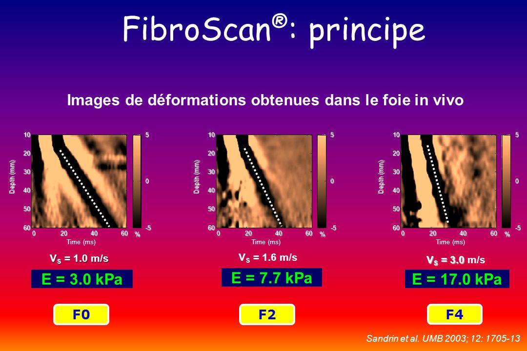 V S = 1.0 m/s E = 3.0 kPaE = 17.0 kPa E = 7.7 kPa F0F2 F4 FibroScan ® : principe Images de déformations obtenues dans le foie in vivo V S = 1.6 m/s V