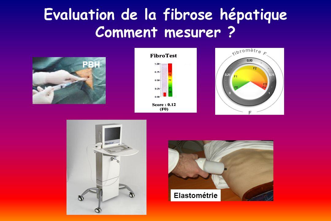 Elastométrie (FibroScan ® )