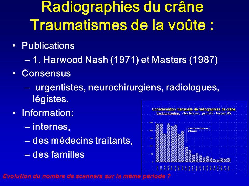 Radiographies du crâne Traumatismes de la voûte : Publications –1. Harwood Nash (1971) et Masters (1987) Consensus – urgentistes, neurochirurgiens, ra