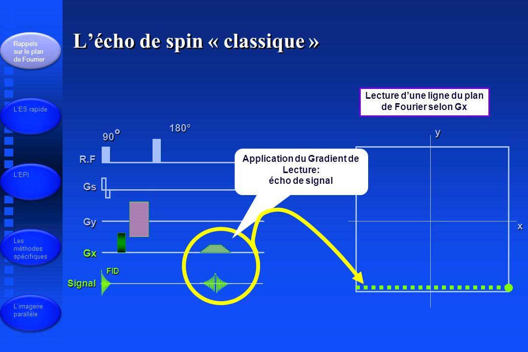 R.F Gs Gy Gx Signal 90 ° FID 180° x y Lecture dune ligne du plan de Fourier selon Gx Application du Gradient de Lecture: écho de signal Lécho de spin « classique » Rappels sur le plan de Fourrier LES rapide LEPI Les méthodes spécifiques Limagerie parallèle