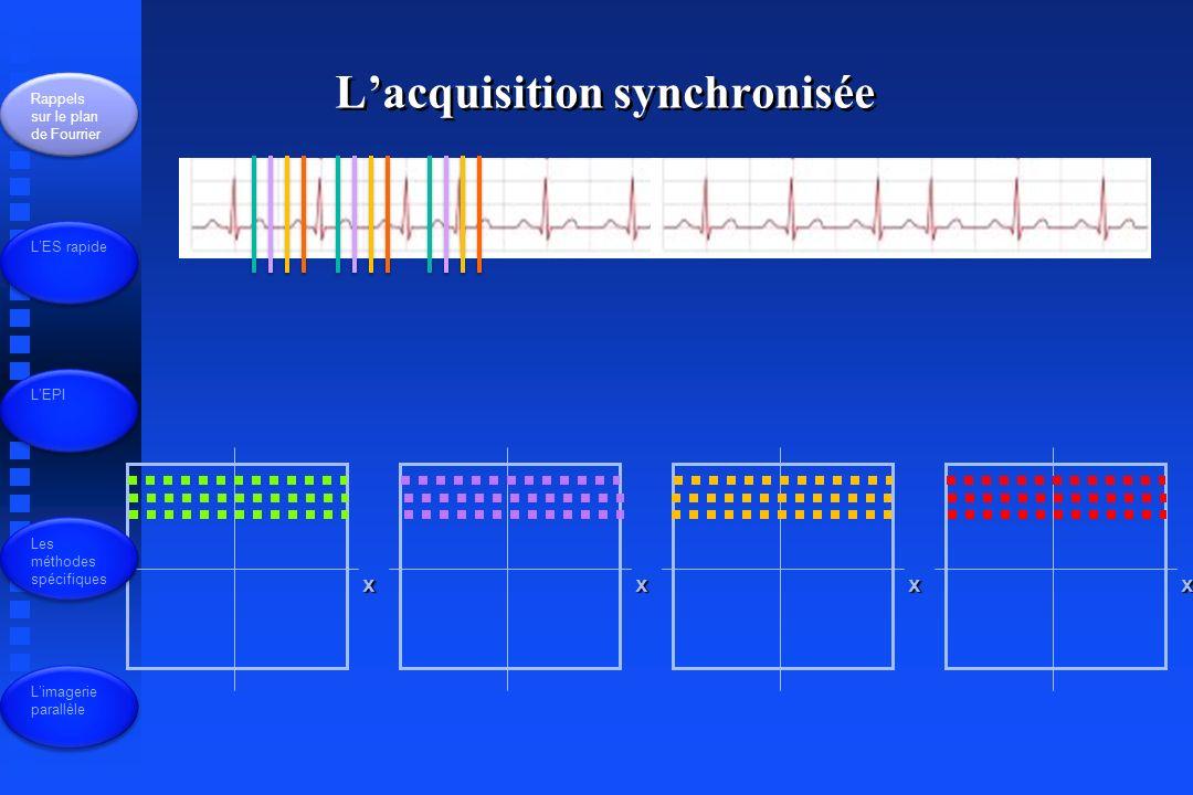 x Lacquisition synchronisée Rappels sur le plan de Fourrier LES rapide LEPI Les méthodes spécifiques Limagerie parallèle yxxx