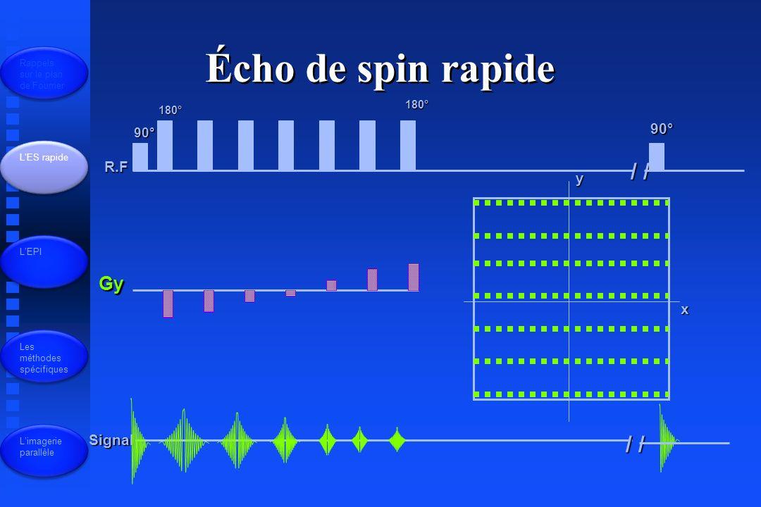 R.F Gy Signal 90° 180° / / 90° x y Écho de spin rapide Rappels sur le plan de Fourrier LES rapide LEPI Les méthodes spécifiques Limagerie parallèle 180°