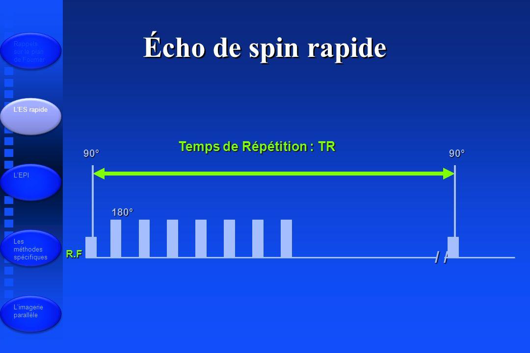 R.F 90° 180° / / 90° Temps de Répétition : TR Écho de spin rapide Rappels sur le plan de Fourrier LES rapide LEPI Les méthodes spécifiques Limagerie parallèle