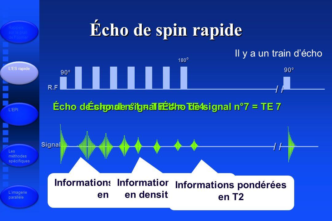 Informations pondérées en T1 R.F Signal 90° 180 ° / / 90° Écho de signal n°1 = TE 1 Il y a un train décho Écho de spin rapide Rappels sur le plan de Fourrier LES rapide LEPI Les méthodes spécifiques Limagerie parallèle Informations pondérées en densité de proton Écho de signal n°4 = TE4 Informations pondérées en T2 Écho de signal n°7 = TE 7